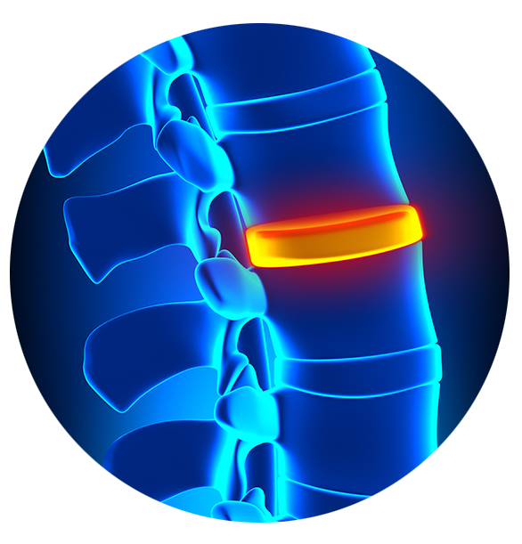 Disc decompression can help treat herniated and bulging discs. - Midwest Healthcare