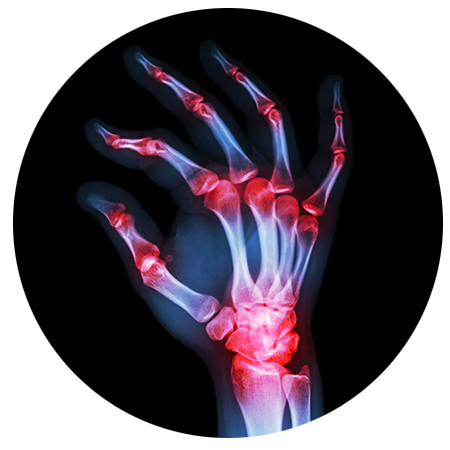 Carpal Tunnel Syndrome Treatment Oswego Il Midwest